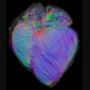 Heart Overlay