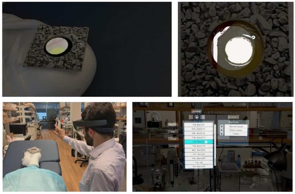 Augmented reality brain tumor